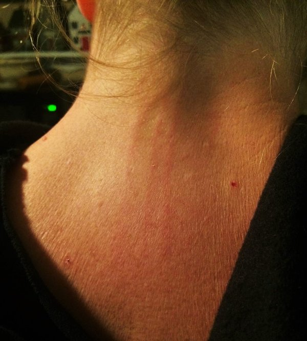 paranormal attack scratches down the back of Janie's neck